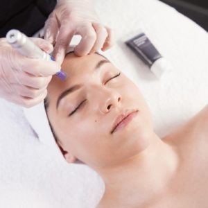 Méticuleux – Soin Microneedling